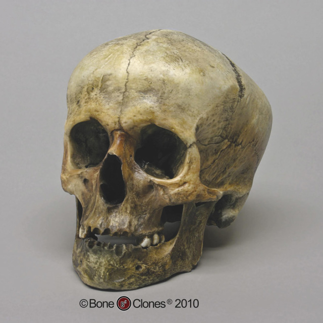 human skull discolored clone s521972503441136676_p925_i1_w640.jpeg